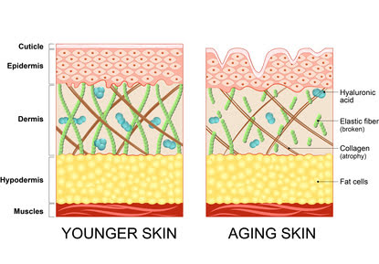 Skin aging due to the lack of collagen